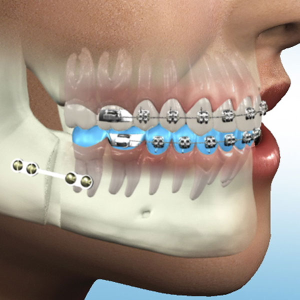 Oral-&-Maxifacial-Surgery